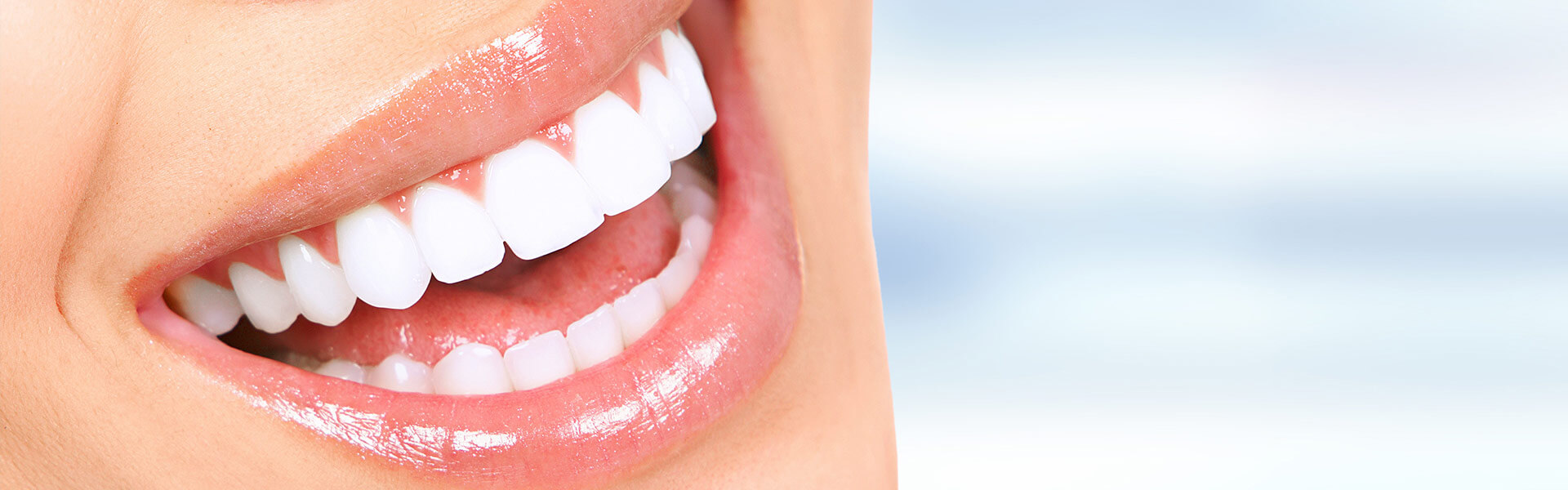 Teeth Whitening in Kingman, AZ